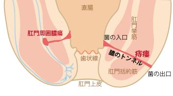 痔瘻の画像 p1_3